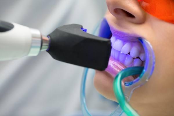 اسعار تبييض الاسنان بالليزر في تركيا