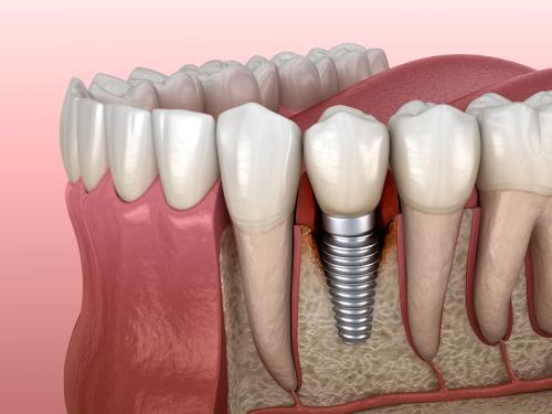 تكلفة زرع الاسنان في تركيا