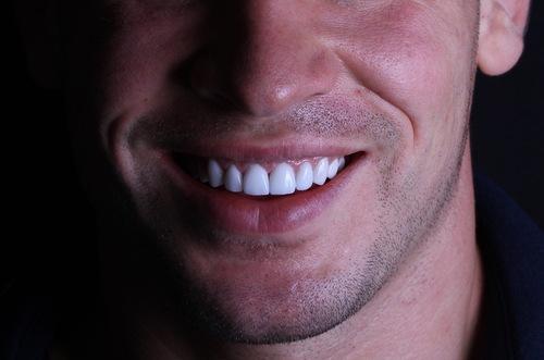 اسعار ابتسامة هوليود في تركيا
