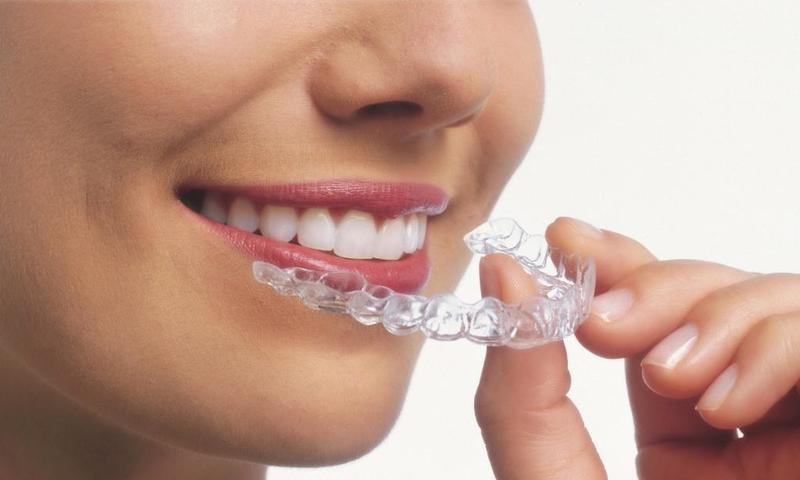 اسعار تلبيس الاسنان الزيركون في تركيا
