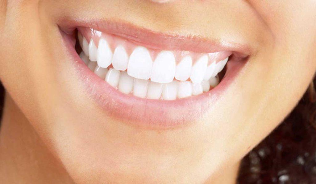 اسعار زراعة الاسنان في تركيا
