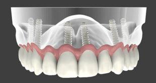 تعرف على افضل دكتور زراعة اسنان في تركيا