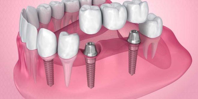 مراكز زراعة الاسنان في أسطنبول