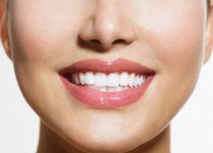 زراعة الأسنان في تركيا وتكلفتها