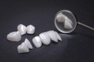 تجربتي في زراعة الأسنان في تركيا