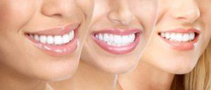 زراعة الأسنان الفورية في تركيا