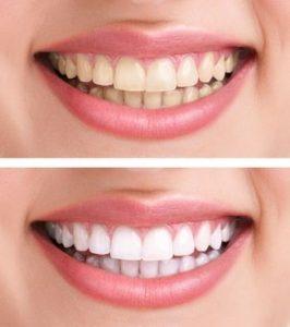 مراكز تقويم الاسنان في تركيا